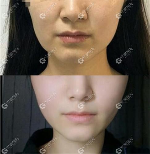 轻度面部下垂做小切口提升的效果