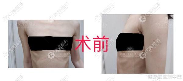 冲着刘中策医生内窥镜隆胸技术,我做的曼托假体半个月了