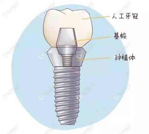 关于武汉瑞博口腔的进口种植牙价格,就算用奥齿泰种植体也不是太贵