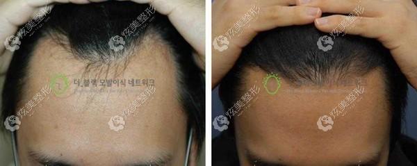 韩国布莱克毛发移植中心做毛发移植效果图