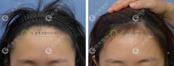 韩国布莱克毛发移植中心做女生毛发移植效果