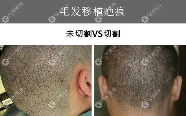 韩国布莱克毛发移植中心种植发迹线的疤痕对比
