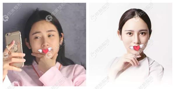 南京艺星整形做美杜莎眼综合效果图
