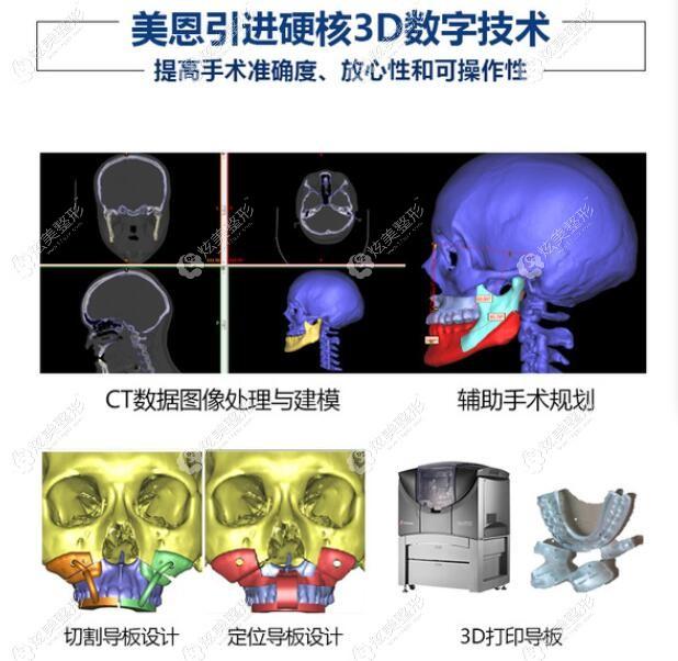 广州美恩引进的3D数字技术