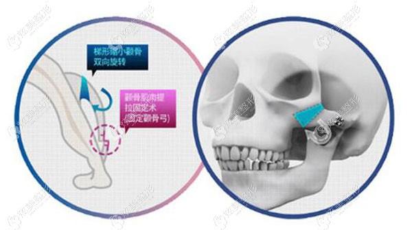 华美做三维颧骨术的原理