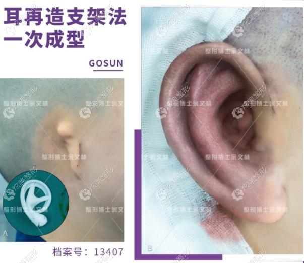 余文林医生medpor支架造耳对比照