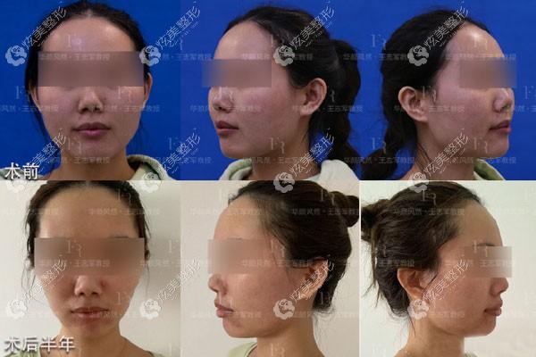 41岁顾客除皱术前术后对比图