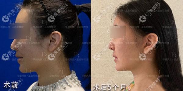 王志军对34岁顾客做面部除皱改善