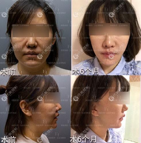 26岁顾客找王志军做第四代除皱术效果