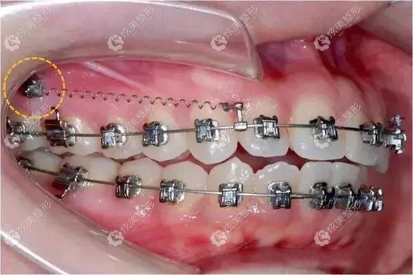 骨钉矫正牙齿的原理