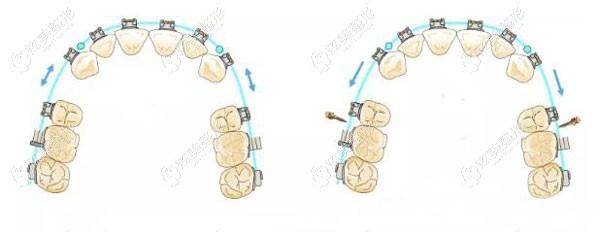 正常矫正和戴骨钉矫正牙齿的平面图