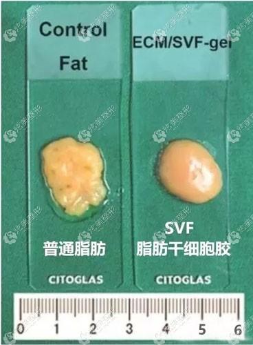 自体脂肪胶和普通脂肪的区别