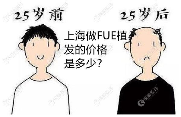 上海地区做fue植发价格是多少呢