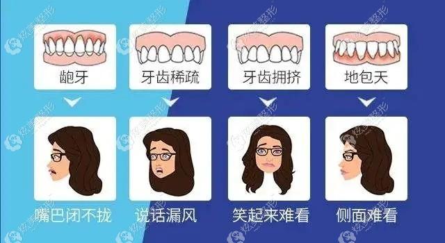 需要做牙齿矫正的几种情况