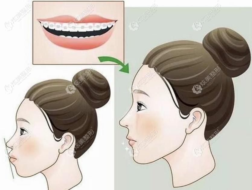 牙齿矫正不分年龄