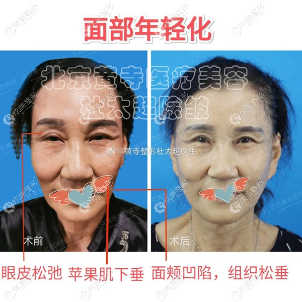 眼皮松弛+苹果机下垂+面颊凹陷+组织松垂做的拉皮手术