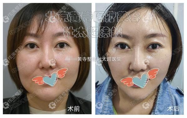 35岁做的小切口拉皮,下颌缘赘肉提升明显,面部松垮得到明显提升紧致