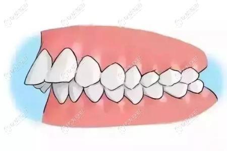 单纯性牙凸