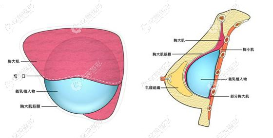 艺星采用双平面隆胸植入假体