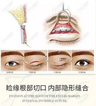 重庆军美整形做帕克双眼皮的过程