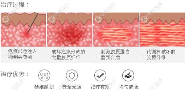 注射疤痕软化针祛疤