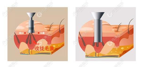 3d植发的拢吸口能取更多毛囊