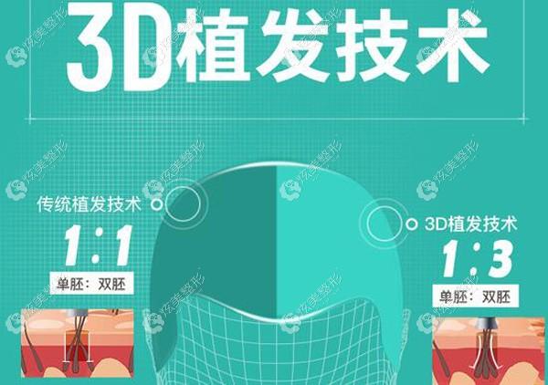 新生3d植发和普通植发的区别是什么