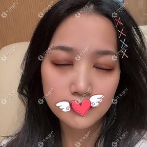南昌陈丹丹医生做双眼皮修复恢复期