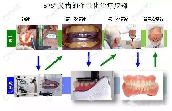 佩戴BPS吸附性义齿的步骤