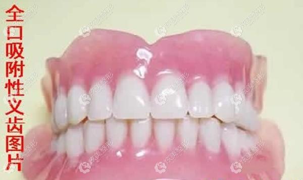 全口吸附性义齿的效果