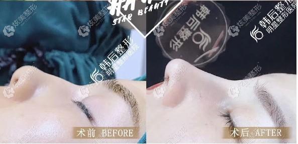 看过小翘鼻的真实例子,才放心找广州韩后崔东做鼻修复手术