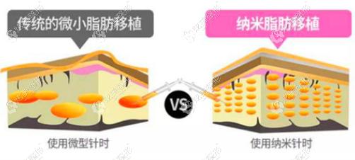 纳米活性脂肪填充技术