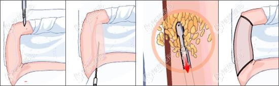 手臂环吸过程