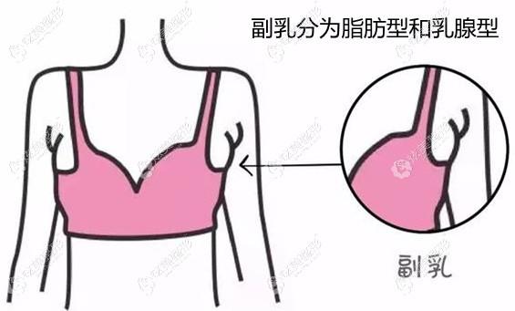 副乳可以抽脂或者切除来改善