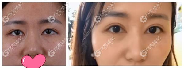 瑞丽整形医生宋桂霞修复双眼皮对比图