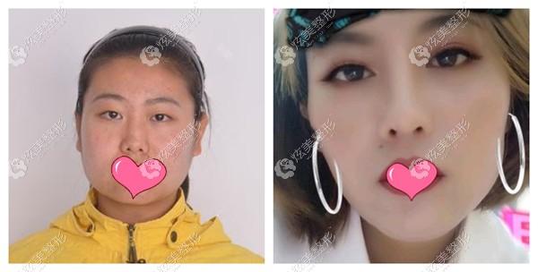 瑞丽整形宋桂霞做眼综合对比