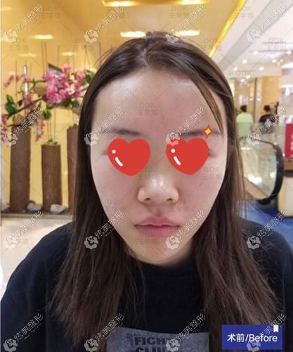找王宇琨隆鼻术前的鼻型