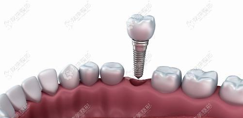 种植牙可以修复半口牙缺失