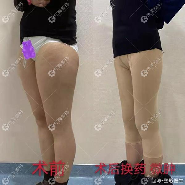 包涛医生大腿吸脂术前和术后对比