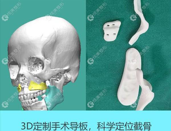 3d数字化定制下颌角截骨