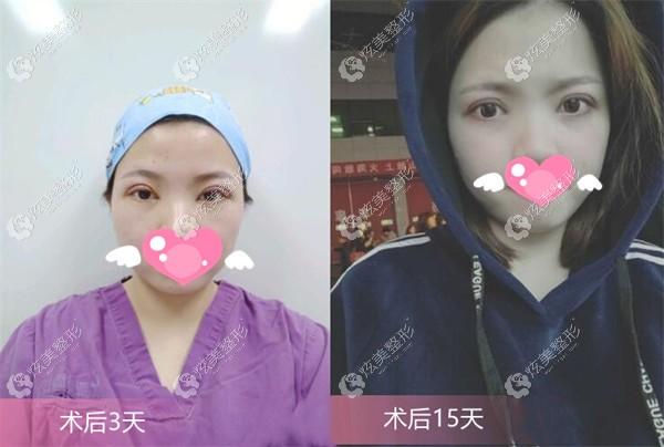 找郑医生做眼综合术后3-15天的恢复效果