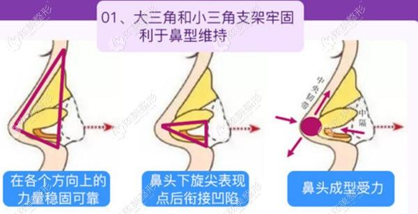 美莱整形做肋骨鼻综合过程