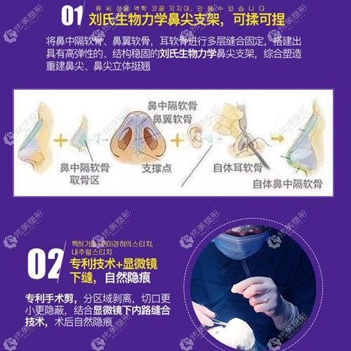 隆鼻手术中安徽韩美的优势点