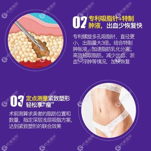 韩美整形做吸脂手术的原理