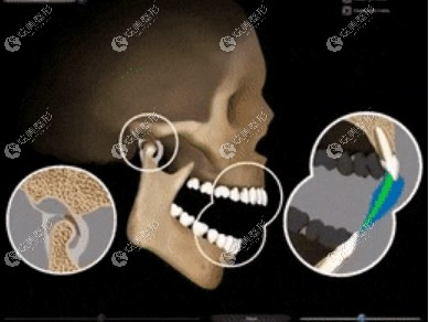 颞颌关节紊乱到底和戴牙套有没有关系