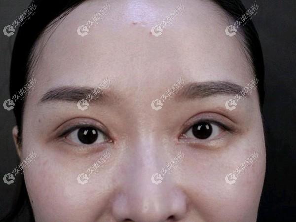 董开云做双眼皮的恢复期肿胀轻
