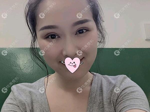 重庆董开云做双眼皮效果自然