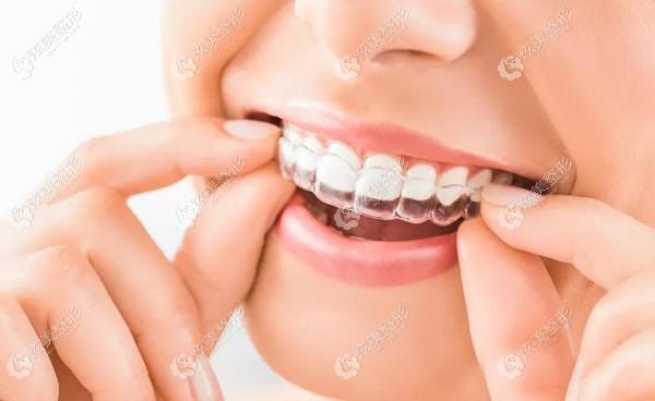 佩戴隐形牙套整牙