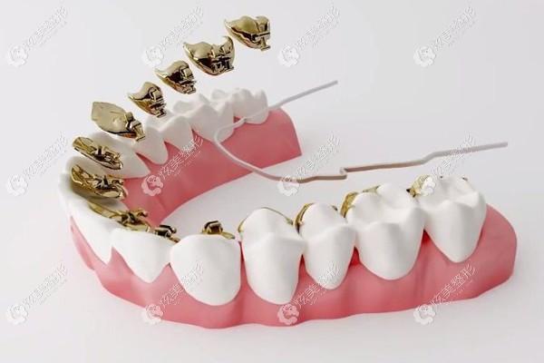 舌侧矫正整牙的方式