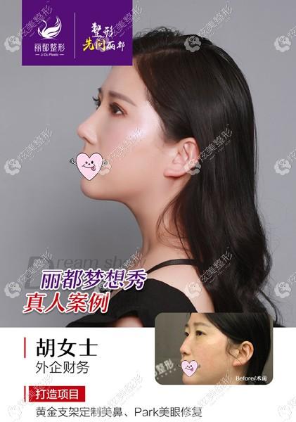 陈光平医生修复双眼皮对比图
